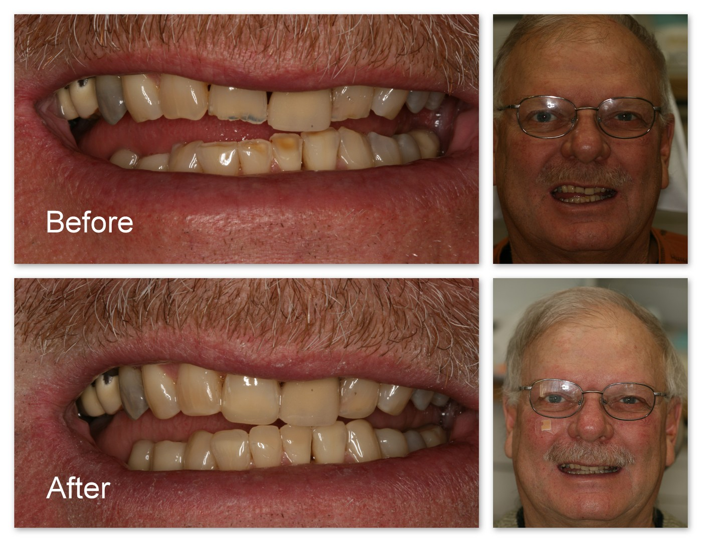 Before- This patient had extremely worn teeth. After- Dr. Jack Hosner of Portage, MI bonded composite resin to restore and protect these teeth which improved overall esthetics.