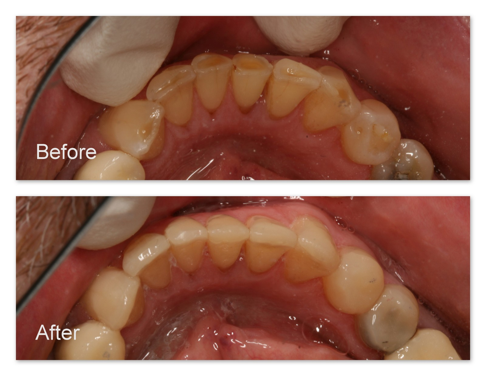 Before- A close-up of the worn lower teeth. After- These teeth have been restored by Dr. Jack Hosner of Portage, MI.