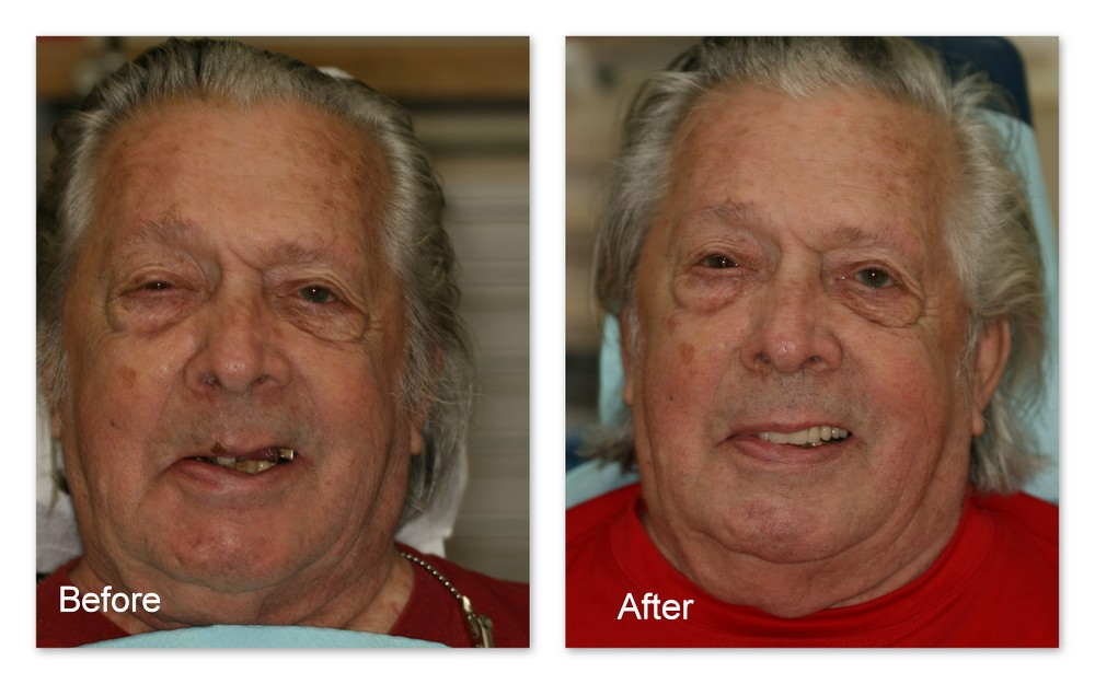 Before- This patient of Dr. Jack Hosner's has multiple missing and broken teeth.  He wanted his smile restored. After- Dr. Jack Hosner of Portage, MI used this patient's two front teeth as attachments to retain a new partial denture. (A close-up of this case can be seen in the overdenture gallery)