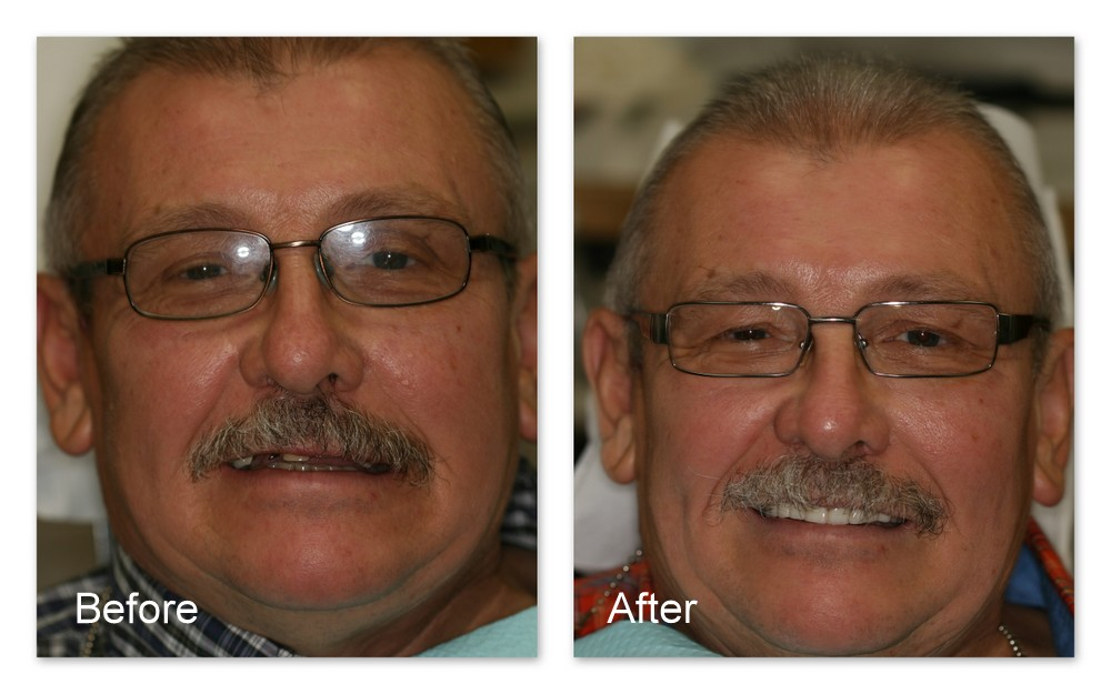 Before- This patient of Dr. Jack Hosner's has multiple missing, decayed, and broken teeth. He desired a partial denture but did not want to show a metal clasp on the front tooth. After- Dr. Jack Hosner of Portage, MI made a new upper partial denture that used one of the broken teeth as an anchor for an attachment that the denture snapped onto. This provides the retention to hold the partial denture in place so that a clasp in the front isn't needed. It also provides better retention than a clasp.