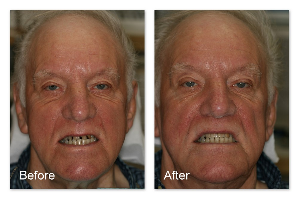 Before- This patient did not like the appearance of his front teeth which had multiple missing fillings and decay. After- His smile has been restored after Dr. Jack Hosner of Portage, MI bonded tooth colored composite resin restorations onto the teeth.