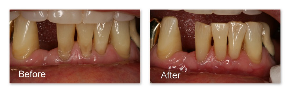 Before- Moderate to severe wear at the necks of these teeth. After- Immediately after restoring with composite resin by Dr. Jack Hosner of Portage, MI