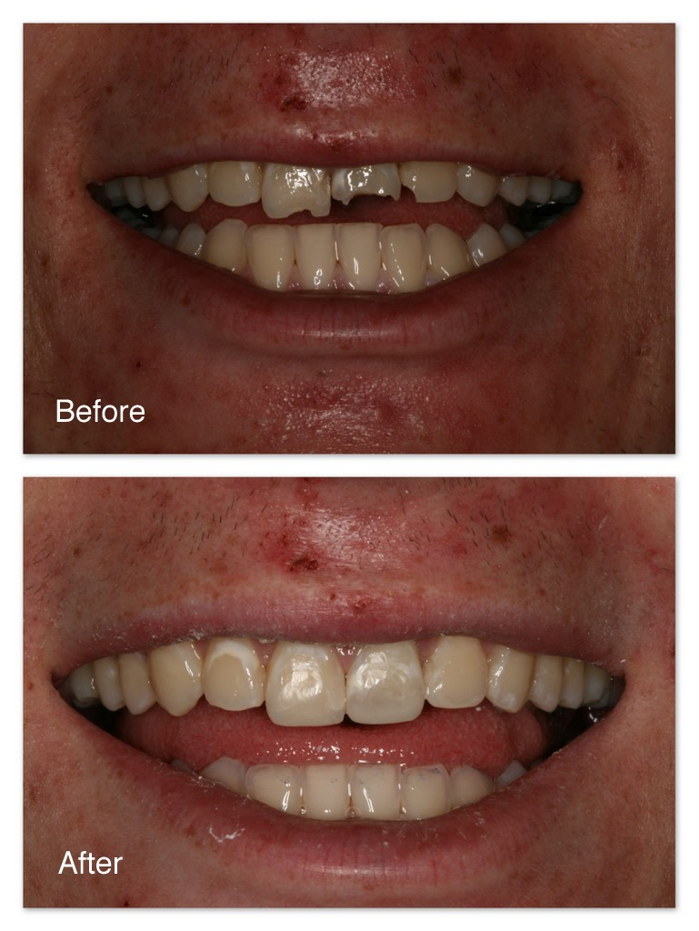 Before- This patient fell and broke three of his front teeth.After- Comfortably, without the need for anesthetic, and in one appointment, Dr. Jack Hosner of Portage, MI bonded tooth colored composite resin material to the teeth to recreate what had been lost. This picture was taken immediately after treatment.