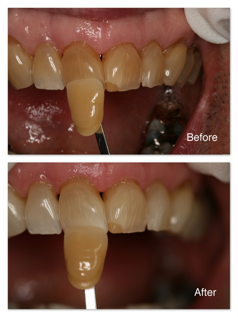 Before- This patient's teeth were very dark. After- After months of dental at-home bleaching, you can see the amazing results. These teeth may continue to lighten up with further bleaching.