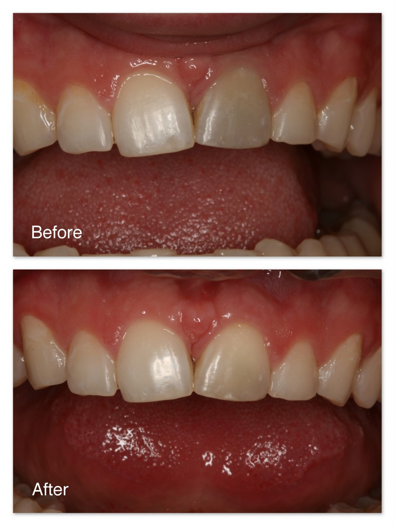 Before- This patient's front tooth is getting dark because of an accident that damaged the nerve/blood vessels within the tooth. After- After root canal therapy by Dr. Jack Hosner to clean out the damaged tissue within the tooth, Dr. Hosner internally and externally bleached the tooth to closely match the other teeth.  The patient was satisfied.