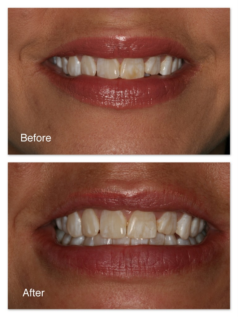 Before- Brown stains are on this patient's front tooth. After- Dr. Jack Hosner of Portage, MI removed the stains comfortably without cutting the tooth.