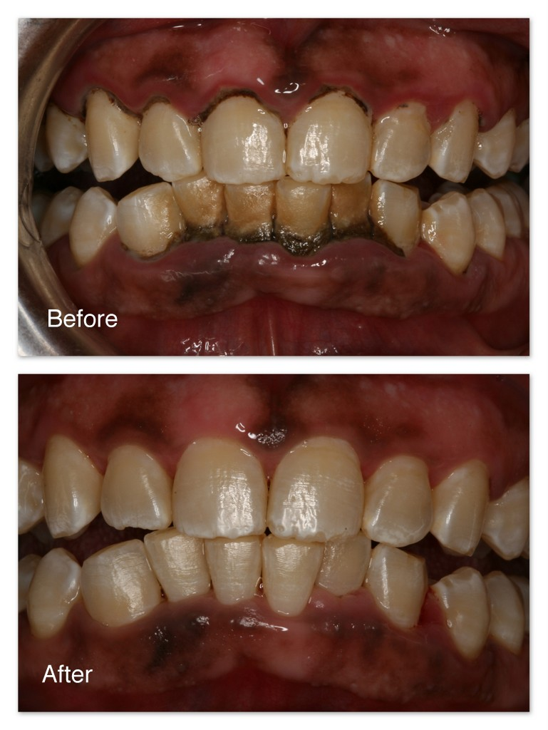 Before- It has been a long time since this patient has had his teeth cleaned.  Plaque and black tartar are built up on the teeth. After- Same patient a couple months after a professional cleaning was completed by the hygienist at Dr. Jack M. Hosner's office in Portage, Michigan.