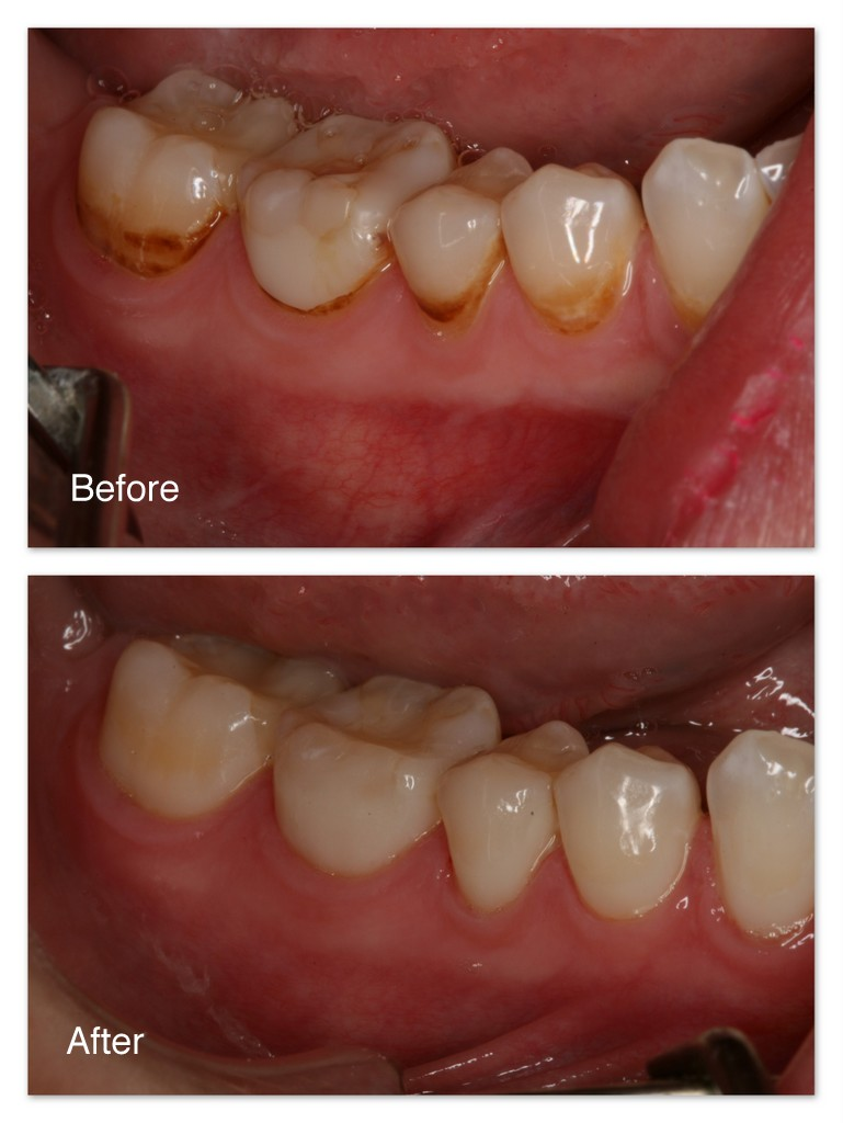 Before- Staining and decay on these teeth bothered the patient. After- Dr. Jack Hosner of Portage, MI removed all decay and staining and bonded tooth colored restorative material to recreate a beautiful and natural appearance.