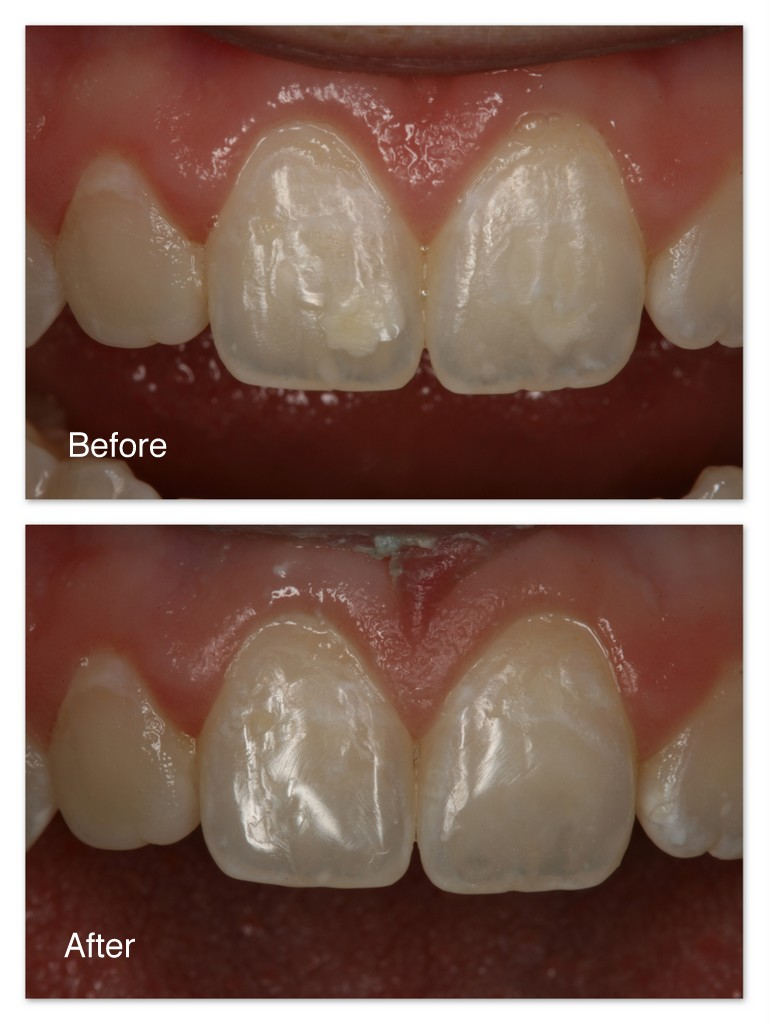 Before- This patient did not like the white opaque stains on her two front teeth. After- Dr. Jack Hosner of Portage, MI cut the stains away and bonded tooth colored dental material to the teeth and polished them to blend seamlessly and unnoticeably.