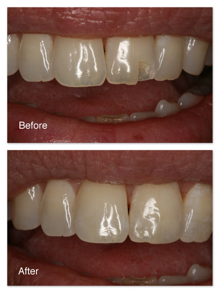 Before- This patient broke her upper front tooth. After- Dr. Jack Hosner of Portage, MI bonded tooth colored dental material to restore tooth back to normal.  No pain.  Numbing not necessary.