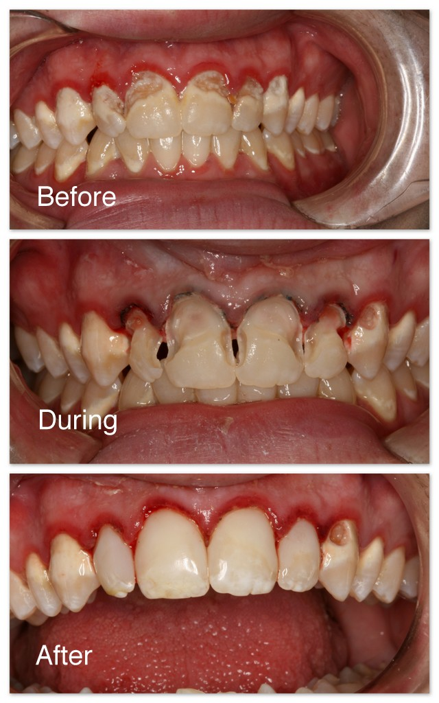 Before- This patient has severe decay on his teeth as a result of frequent sugar beverage drinking – pop. During- In this picture, you can see that Dr. Jack Hosner of Portage, MI has removed all of the decay from the four front teeth. After- This is immediately after restoring these teeth with tooth colored composite resin material.