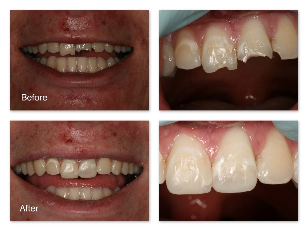 Before- This patient fell and broke three of his front teeth. After- Comfortably, without the need for anesthetic, and in one appointment, Dr. Jack Hosner of Portage, MI bonded tooth colored composite resin material to the teeth to recreate what had been lost. This picture was taken immediately after treatment.  Before- Close Up  After- Close Up