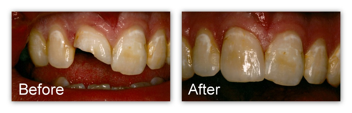 Before-  Close-up of fractured tooth. After- Close-up of new porcelain crown.  Notice all the color detail in this crown to make it look like a natural tooth.