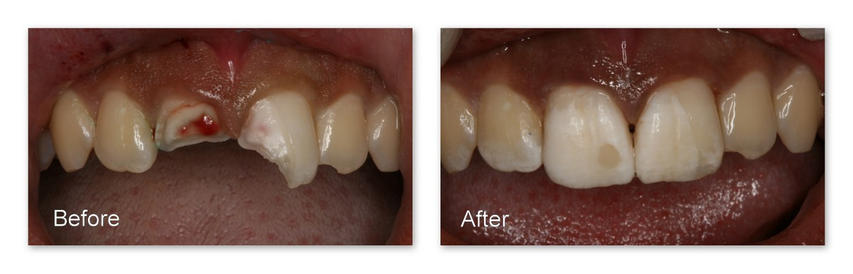 Before- This sixteen year old patient of Dr. Jack Hosner's fell and fractured her two front teeth. The tooth on the left is fractured into the nerve thus requiring root canal therapy. After- This photo was taken right after treatment - the same day she came in. Dr. Jack Hosner of Portage, MI performed root canal therapy on the tooth on the left and bonded the patient's own broken tooth pieces back onto her teeth. * Note, the broken, reattached pieces are dehydrated from being left out of the mouth for an extended period of time, and this is why they appear whiter than the tooth structure that did not break out of the mouth. After 4-6 hours, the patient's own saliva will rehydrate the tooth structure back to its original color.