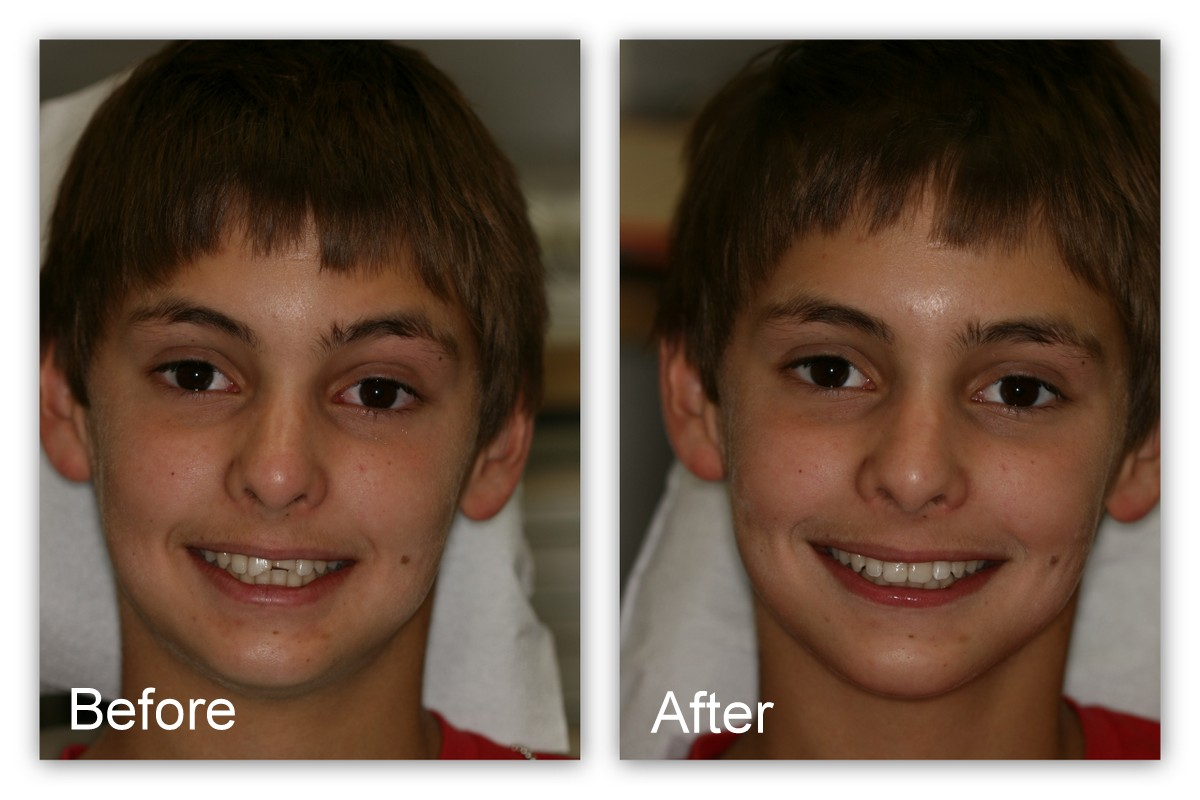 Before- This young man broke his two front teeth and could not find the broken pieces.  Before- This young man broke his two front teeth and could not find the broken pieces. After- Composite resin was bonded directly to his teeth by Dr. Jack Hosner of Portage, MI to restore the natural appearance.