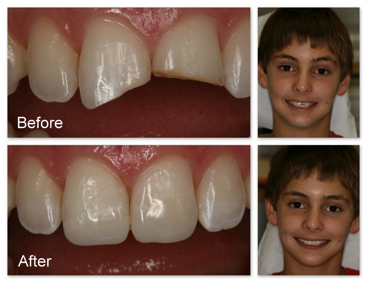 Before- This is a close-up of the same patient showing the broken teeth. After- The artificial, tooth colored composite resin bonded to the teeth and polished by Dr. Jack Hosner of Portage, MI.