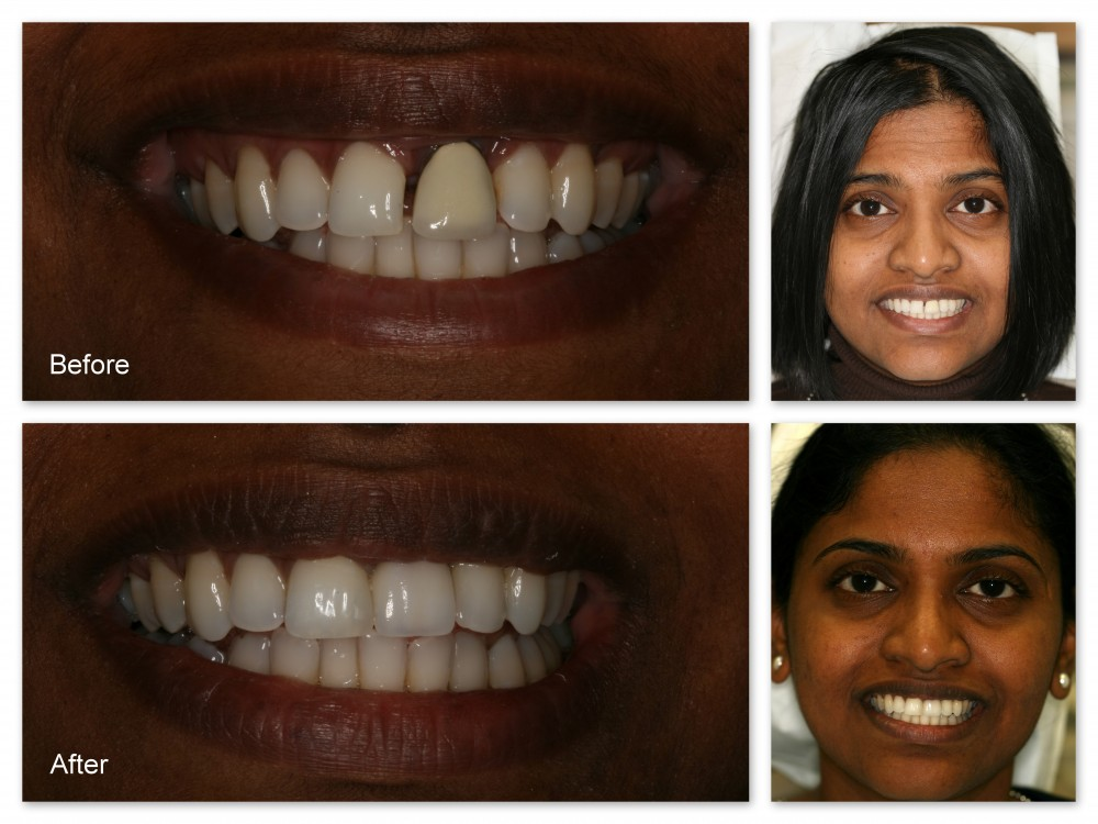 Before- This patient didn't like the space between her two front teeth or the odd shape of the tooth you see on the left. After- Dr. Jack Hosner of Portage, MI placed a porcelain crown on the tooth on the right, and he bonded composite resin to the tooth on the left to close the gap and create ideal shapes.