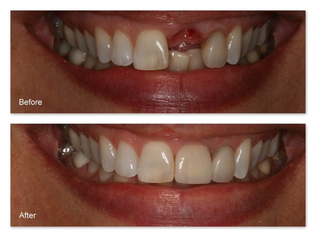 Before- This patient is missing her upper front tooth. After- Dr. Jack Hosner of Portage, MI placed a dental implant and restored it with a porcelain fused to metal crown.