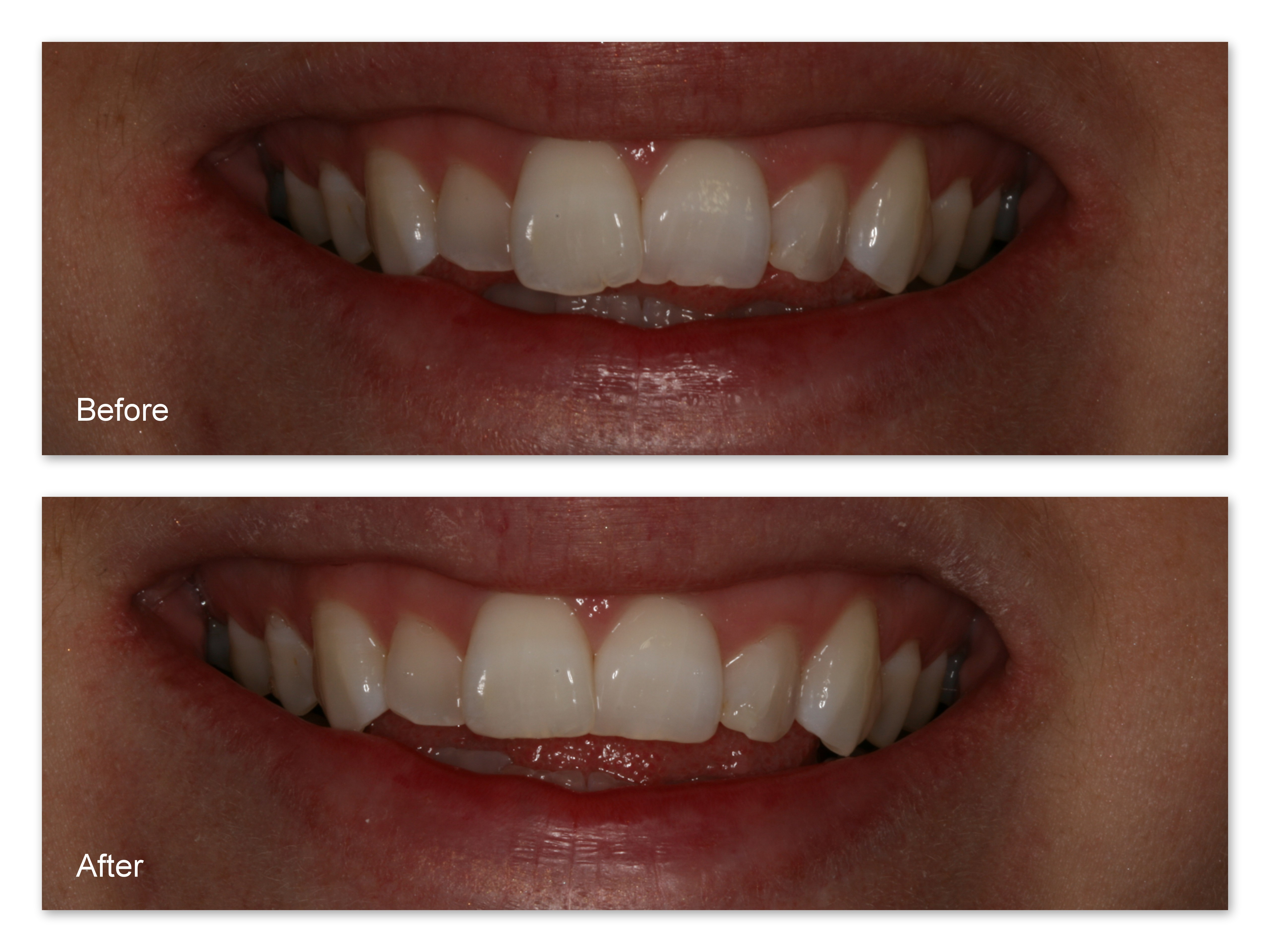 Before- This patient didn't like the shapes of his two front teeth. They were 'bumpy' and uneven. After- Dr. Jack Hosner of Portage, MI simply re-contoured these two front teeth to straighten them and blend them better with the rest of his teeth. This was done comfortably without anesthesia.