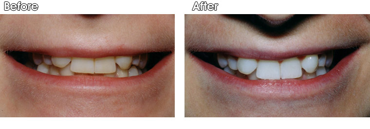 Before- This patient presented to Dr. Jack Hosner of Portage, MI requesting to whiten her teeth. After- The teeth are much whiter after the patient bleached her teeth at home using custom fitting bleach trays and strong bleaching gel she received at Dr. Hosner's office.