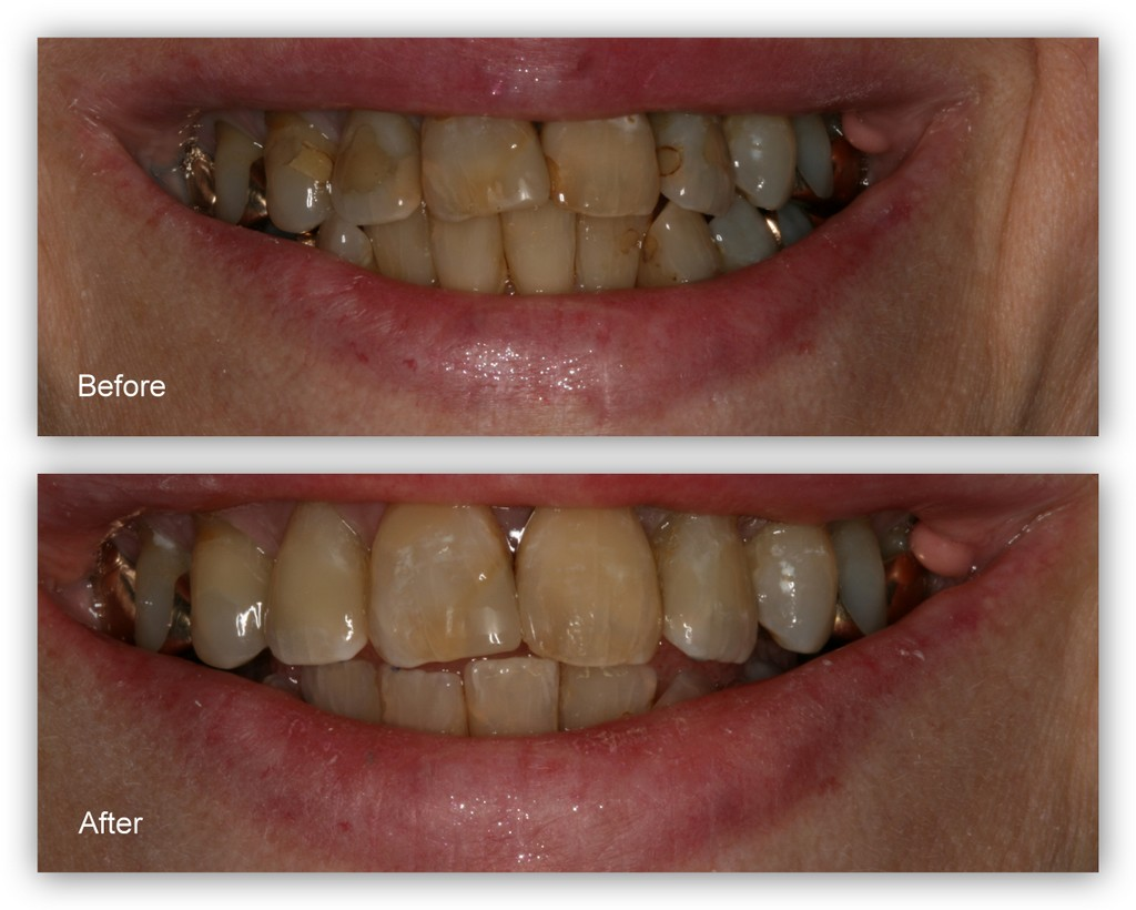 Before- This patient didn't like the appearance of the brown stains and old fillings on her front teeth. After- Dr. Jack Hosner of Portage, MI removed the old fillings and stains. New composite resin fillings were bonded and polished to provide a more acceptable appearance.