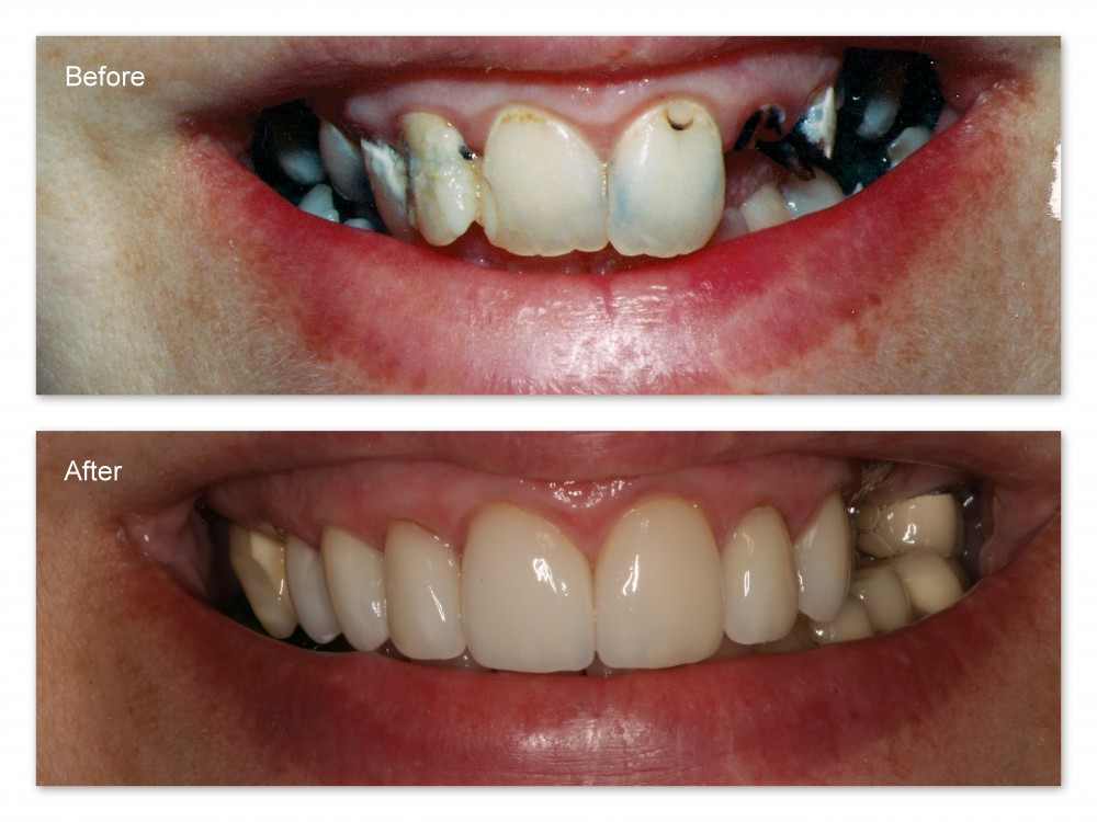 Before- This patient came to Dr. Jack Hosner's office in Portage, MI unhappy with her smile.  She had severely decayed and broken teeth. After- This photo shows all the decay removed and seven upper teeth restored with porcelain crowns.  No teeth were removed, and further treatment is needed.