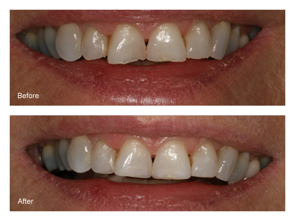Before- This patient has chipped and irregularly shaped front four teeth. After- Dr. Jack Hosner of Portage, MI bonded composite resin to these teeth and also reshaped them.
