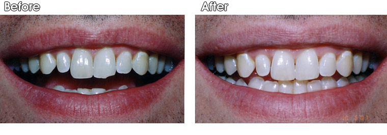 Before- This patient chipped his front tooth. After- Dr. Jack Hosner of Portage MI reshaped the edges of his two front teeth without anesthetic  to create a more attractive appearance.   The patient experienced no sensitivity.