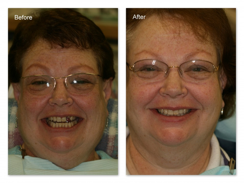 Before- Missing front tooth. After- Dental implant was placed and restored with a porcelain crown by Dr. Jack Hosner of Portage, MI.