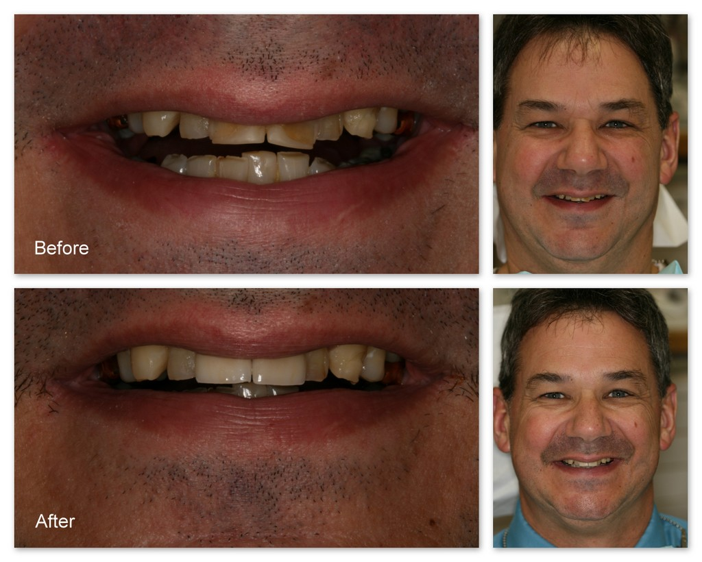 Before- This patient of Dr. Jack Hosner's has severe erosion of his upper anterior teeth. He wanted only the two front teeth restored for now. After- Porcelain crowns were bonded to this patient's upper two front teeth to protect from future erosion and to restore aesthetics.