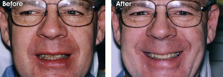 Before- Two front teeth are broken from an accident. After- Dr. Jack Hosner of Portage, MI restored two front teeth with porcelain crowns.