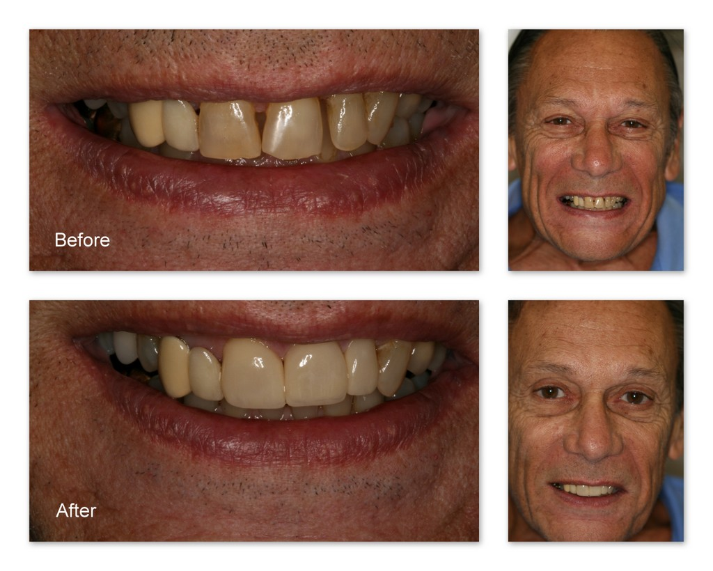 Before- This patient wanted his teeth whiter, straighter, and the gaps filled in. After- With porcelain veneers placed on just three of his teeth, Dr. Hosner of Portage, MI was able to lighten his smile and close the gaps.