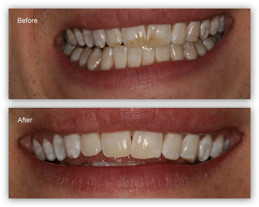Before- This patient doesn't like the dark stains on his teeth that he has had most of his life. After- This picture was taken over two weeks after Dr. Jack Hosner removed the stains with a weak acid polishing paste. Notice the improvement. The acid continues to remove stain for up to two weeks after the initial treatment.