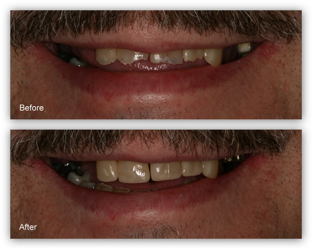 Before- This patient has severe wear and erosion on his upper front teeth After- Dr. Jack Hosner bonded composite to the four front teeth to restore appearance and protect from fracture.