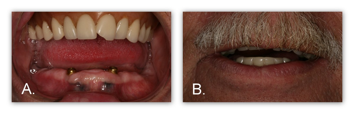 A.-Dr. Jack Hosner then made a denture with retentive o-rings bonded to the underside surface. This ''overdenture'' now can snap over the gold attachments, thus holding the lower denture in place. B.-This final picture shows the patient with his lower denture in place, and staying in place.