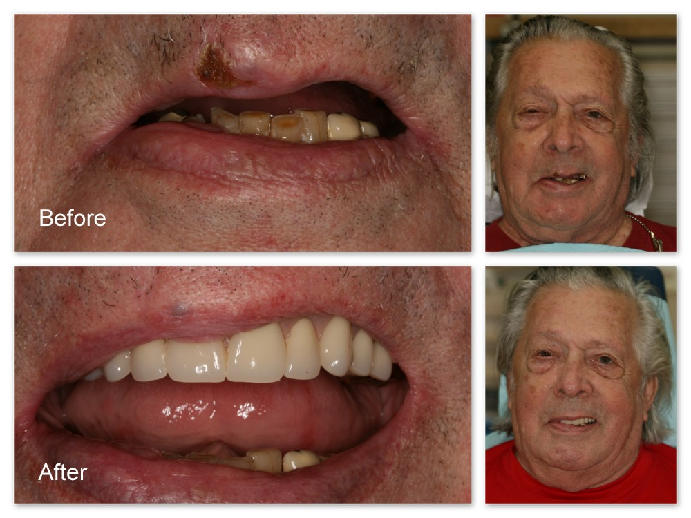 Before- This patient of Dr. Jack Hosner's has multiple missing and broken teeth.  He wanted his smile restored. After- Dr. Jack Hosner of Portage, MI used this patient's two front teeth as attachments to retain a new partial denture.