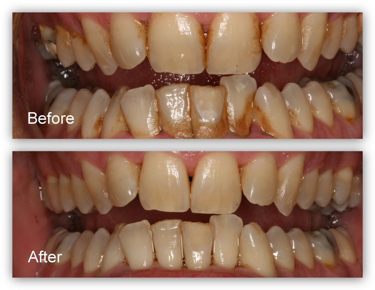 "Before- This patient has periodontal disease (a very common advanced form of gum disease) with staining and tartar build-up on his teeth. After- The hygienist at Dr. Jack Hosner's office in Portage, MI cleaned the teeth thoroughly to eliminate the infection, (a cleaning called "" Scaling and Root Planing""). These teeth need to be cleaned at least every three months to maintain health and prevent the active gum infection from recurring."