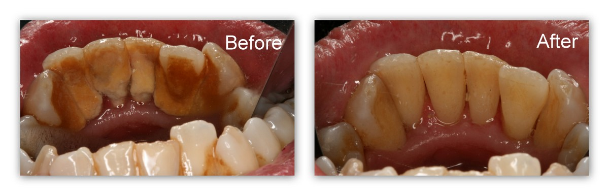 Before- A close-up of the inside surfaces of the lower front teeth before cleaning. After- After the teeth have been cleaned by Dr. Jack Hosner's hygienist.