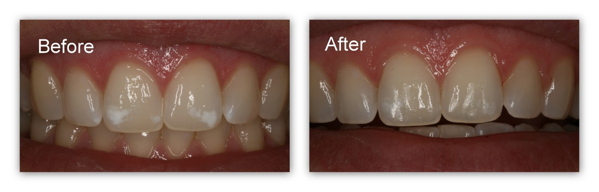 Before- Naturally occurring white spots on front teeth. After- After one short in office treatment, Dr. Jack Hosner of Portage, MI removed most of the stains.  A second treatment may remove the remaining stains, or composite bonding may need to be done;  however, this patient was happy without any further treatment.