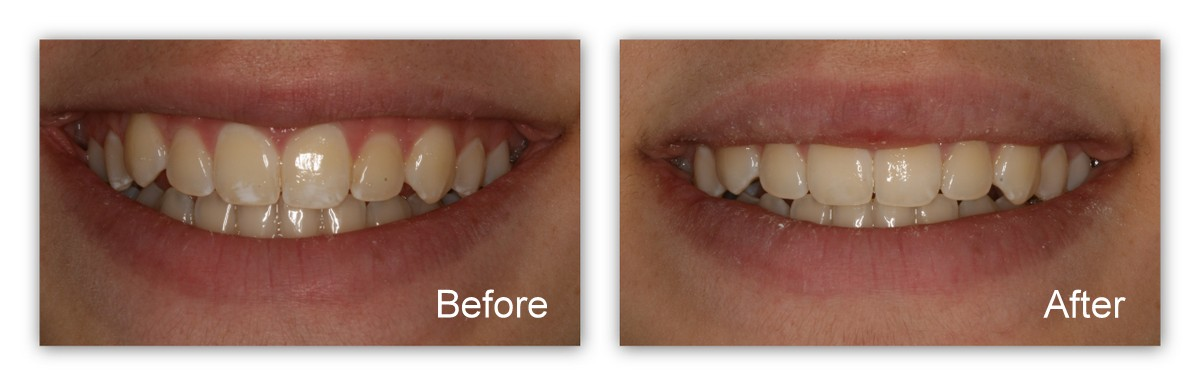 Before- White, opaque blotches on the upper front teeth. After- Dr. Jack Hosner of Portage, MI removed the stains in just a few minutes.