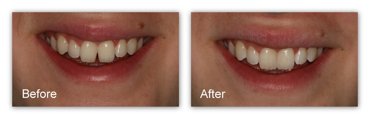 Before-This young patient of Dr. Jack Hosner's did not like the appearance of her two front teeth nor the gap between them. After- This picture shows the teeth immediately after bonding with composite resin by Dr. Jack Hosner of Portage, MI. This procedure was completed comfortably with no anesthetic.