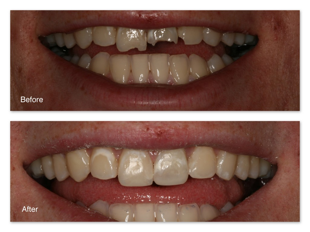 Tooth Colored Fillings Gallery Dr Jack M Hosner D D S