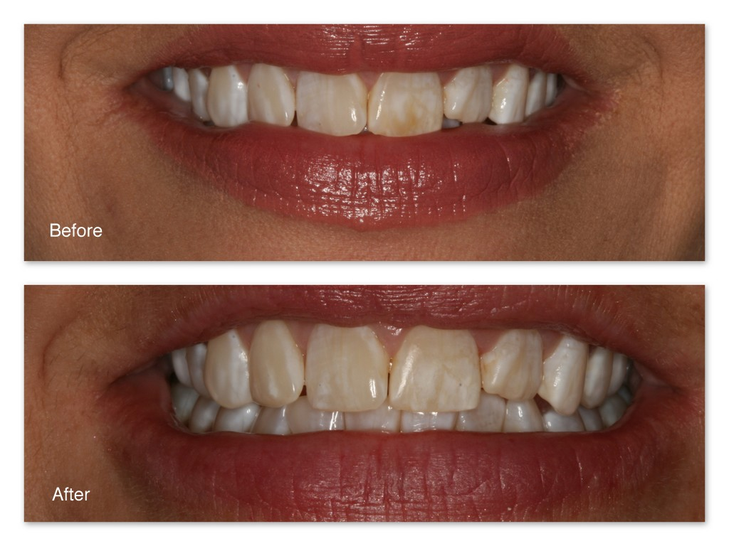 Tooth Stain Removal White Teeth