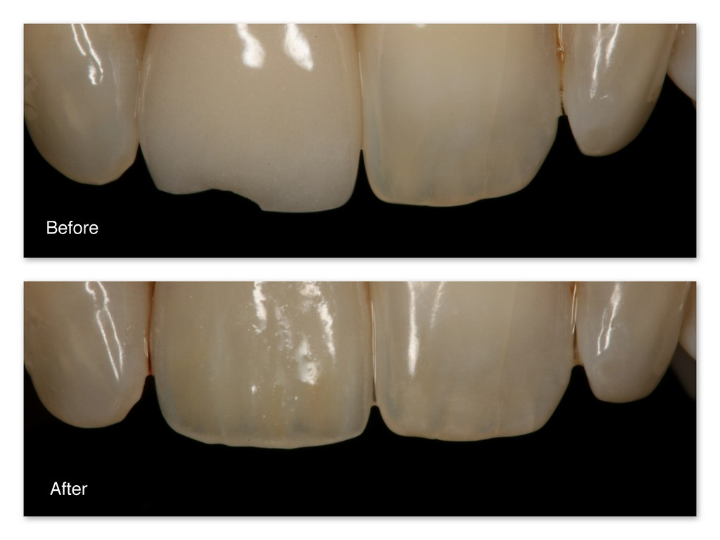 "Before- This patient has a broken old porcelain crown.  Notice the monochromatic ""dull"" appearance of the crown. After- Dr. Jack Hosner of Portage, MI replaced this crown with a more natural appearing porcelain crown.  Notice how it has multiple colors to it and doesn't look dull."