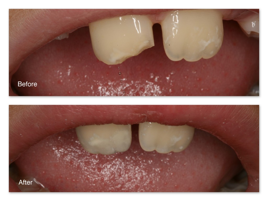 How to restore a tooth