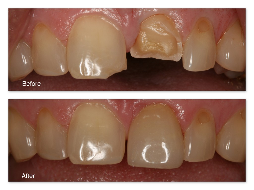 Before- This patient broke his two front teeth. After- Dr. Jack Hosner of Portage, MI bonded a porcelain crown onto this tooth to restore natural form.